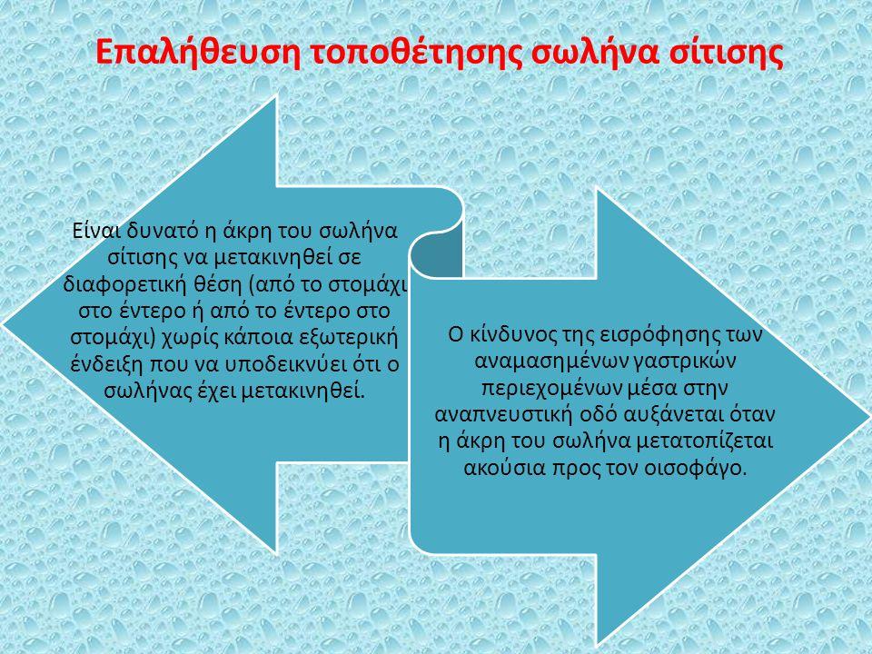 Επαλήθευση τοποθέτησης σωλήνα σίτισης Είναι δυνατό η άκρη του σωλήνα σίτισης να μετακινηθεί σε διαφορετική θέση (από το στομάχι στο έντερο ή από το έν