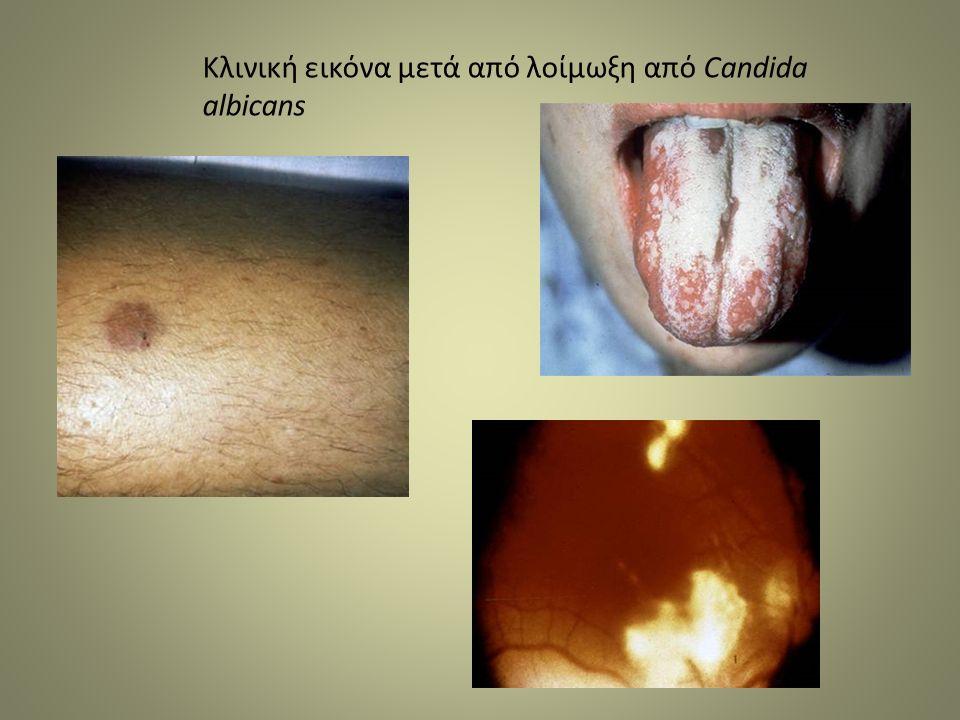 Κλινική εικόνα μετά από λοίμωξη από Candida albicans