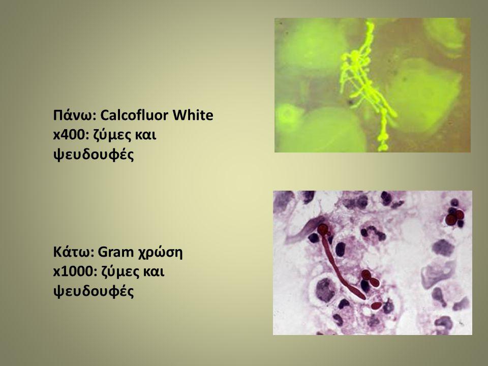 Πάνω: Calcofluor White x400: ζύμες και ψευδουφές Κάτω: Gram χρώση x1000: ζύμες και ψευδουφές