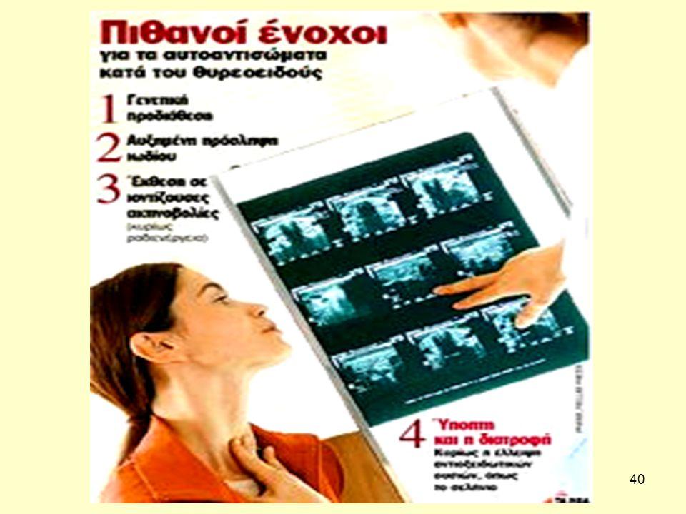 41 Αντιθυρεοειδή αντισώματα στην Ελλάδα Γονίδια προδιάθεσης.