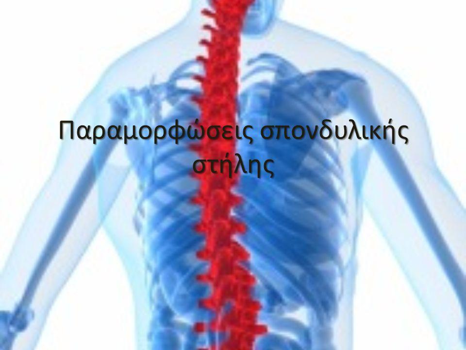Παραμορφώσεις σπονδυλικής στήλης