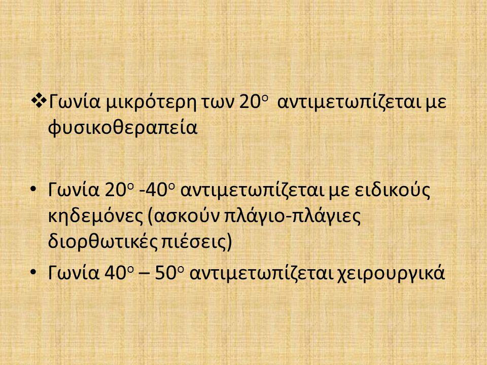  Γωνία μικρότερη των 20 ο αντιμετωπίζεται με φυσικοθεραπεία Γωνία 20 ο -40 ο αντιμετωπίζεται με ειδικούς κηδεμόνες (ασκούν πλάγιο-πλάγιες διορθωτικές