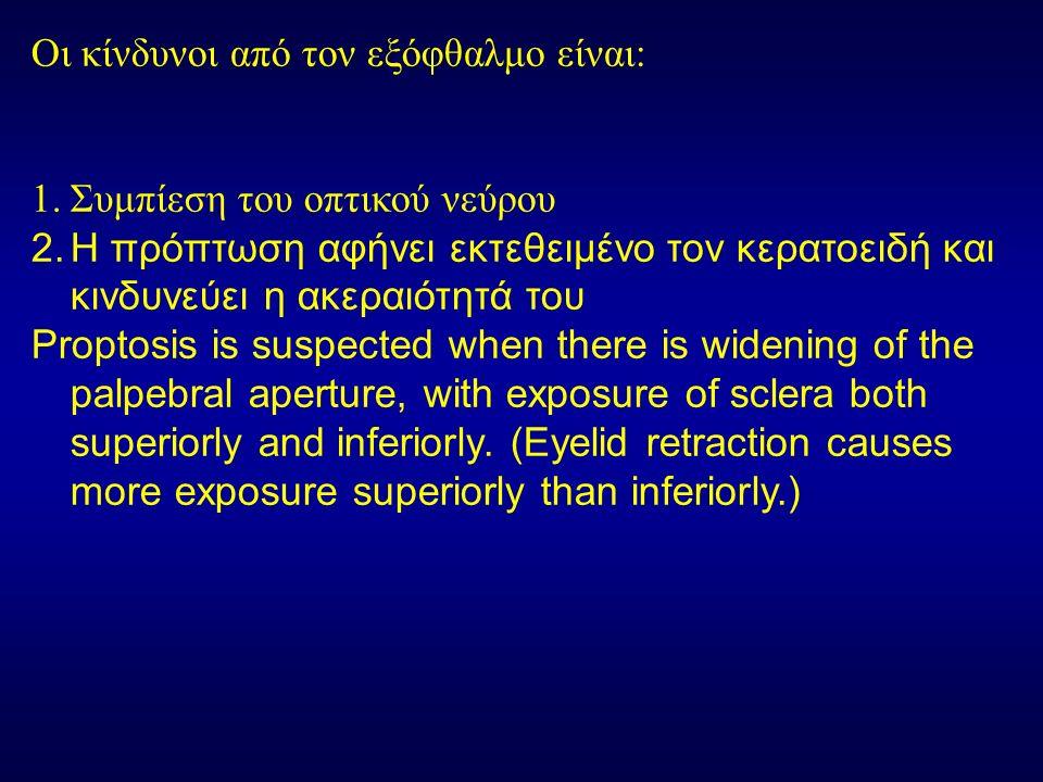 Οι κίνδυνοι από τον εξόφθαλμο είναι: 1.Συμπίεση του οπτικού νεύρου 2.Η πρόπτωση αφήνει εκτεθειμένο τον κερατοειδή και κινδυνεύει η ακεραιότητά του Proptosis is suspected when there is widening of the palpebral aperture, with exposure of sclera both superiorly and inferiorly.