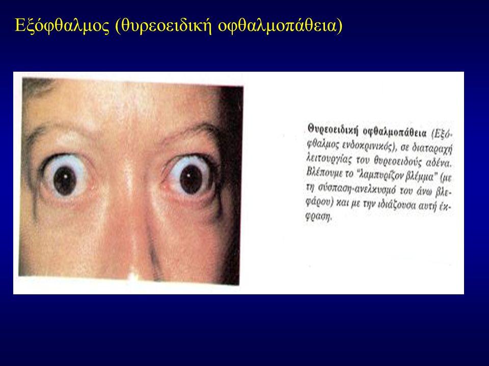 ΑΙΜΟΡΡΑΓΙΑ ΣΤΟΝ ΚΟΓΧΟ Αίτια: 1.Τραυματισμός 2.Αιματολογικές παθήσεις 3.Μετά από τοπική αναισθησία Εάν η ενδοκογχική αιμορραγία είναι ευμεγέθης, μπορεί να προκαλέσει στραγγαλισμό του οπτικού Νεύρου και συνιστάται άμεση αποσυμπίεση