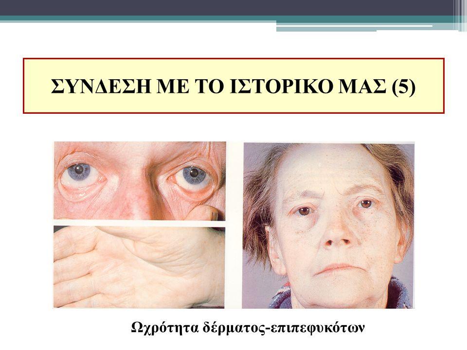 ΣΥΝΔΕΣΗ ΜΕ ΤΟ ΙΣΤΟΡΙΚΟ ΜΑΣ (5) Ωχρότητα δέρματος-επιπεφυκότων