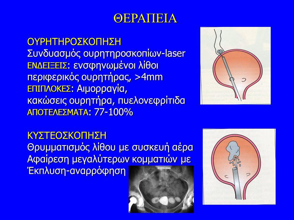ΘΕΡΑΠΕΙΑ ΟΥΡΗΤΗΡΟΣΚΟΠΗΣΗ Συνδυασμός ουρητηροσκοπίων-laser ΕΝΔΕΙΞΕΙΣ : ενσφηνωμένοι λίθοι περιφερικός ουρητήρας, >4mm ΕΠΙΠΛΟΚΕΣ : Αιμορραγία, κακώσεις ουρητήρα, πυελονεφρίτιδα ΑΠΟΤΕΛΕΣΜΑΤΑ : 77-100% KΥΣΤΕΟΣΚΟΠΗΣΗ Θρυμματισμός λίθου με συσκευή αέρα Αφαίρεση μεγαλύτερων κομματιών με Έκπλυση-αναρρόφηση