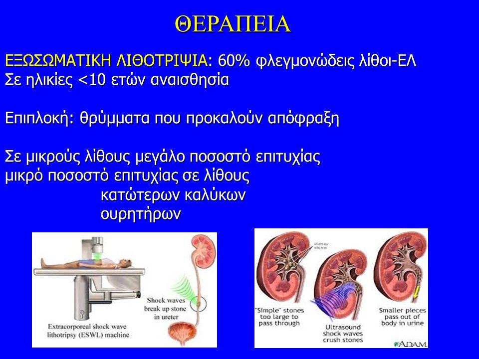 ΘΕΡΑΠΕΙΑ ΕΞΩΣΩΜΑΤΙΚΗ ΛΙΘΟΤΡΙΨΙΑ: 60% φλεγμονώδεις λίθοι-ΕΛ Σε ηλικίες <10 ετών αναισθησία Επιπλοκή: θρύμματα που προκαλούν απόφραξη Σε μικρούς λίθους μεγάλο ποσοστό επιτυχίας μικρό ποσοστό επιτυχίας σε λίθους κατώτερων καλύκων ουρητήρων