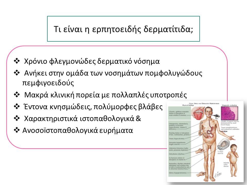 Ευαισθησία στην γλουτένη Κοινοί HLA απλότυποι (DQ2 & DQ8) Αλλοιώσεις σε βιοψία λεπτού εντέρου Παρουσία κοινών αυτοαντισωματων (tTG) Ερπητοειδής δερματίτις Κοιλιοκάκη H ερπητοειδής δερματίτιδα ως δερματική εκδήλωση της κοιλιοκάκης > 90 % 9-15 % Bolotin D, et al.