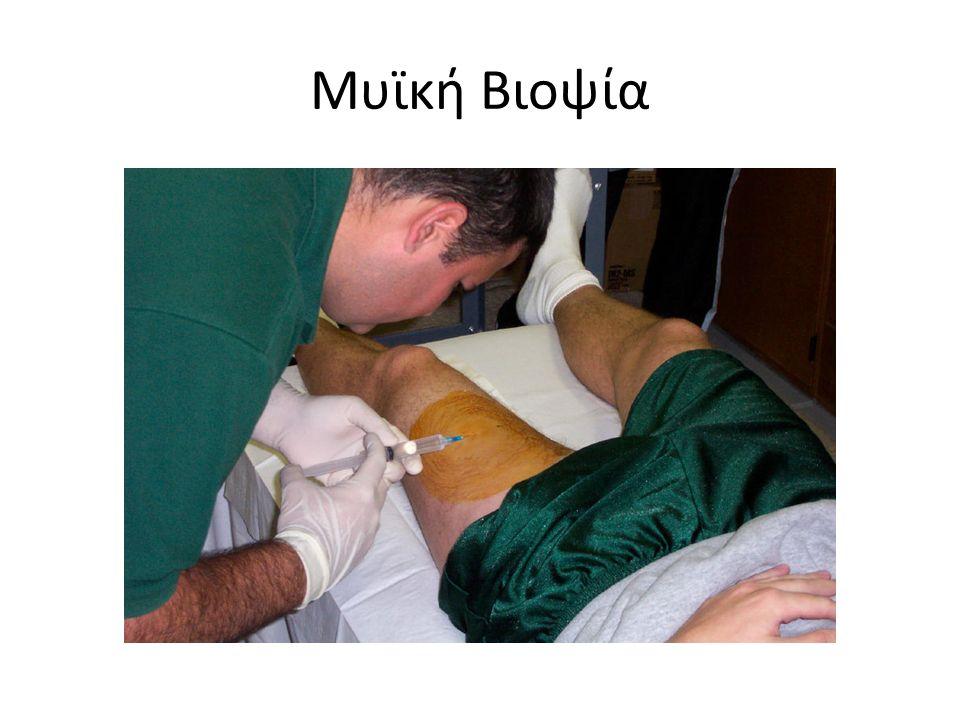Βελόνα μυϊκής βιοψίας Αποτελείται από τρία μέρη τα οποία έχουν τη διάμετρο και το μήκος ενός μολυβιού.