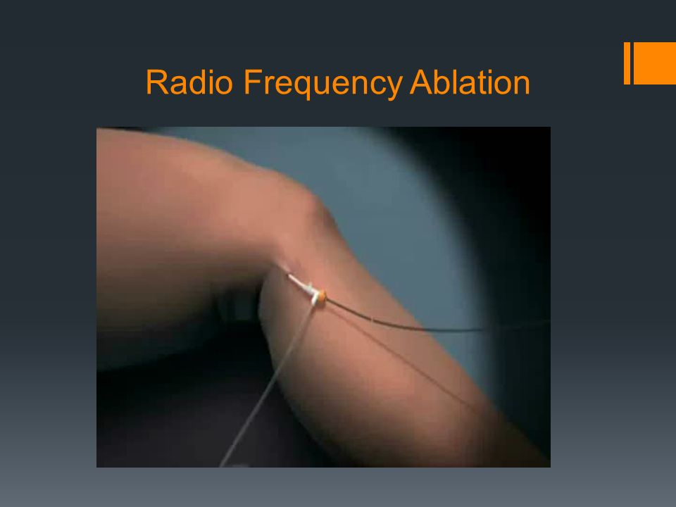 Radio Frequency Ablation