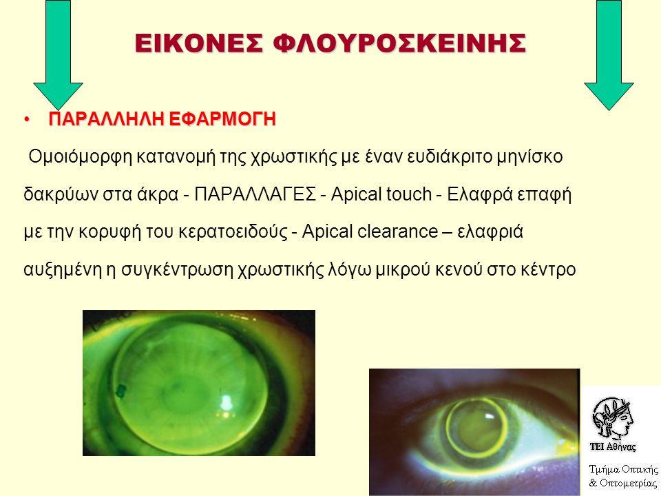 ΕΙΚΟΝΕΣ ΦΛΟΥΡΟΣΚΕΙΝΗΣ ΠΑΡΑΛΛΗΛΗ ΕΦΑΡΜΟΓΗΠΑΡΑΛΛΗΛΗ ΕΦΑΡΜΟΓΗ Ομοιόμορφη κατανομή της χρωστικής με έναν ευδιάκριτο μηνίσκο δακρύων στα άκρα - ΠΑΡΑΛΛΑΓΕΣ - Apical touch - Ελαφρά επαφή με την κορυφή του κερατοειδούς - Apical clearance – ελαφριά αυξημένη η συγκέντρωση χρωστικής λόγω μικρού κενού στο κέντρο