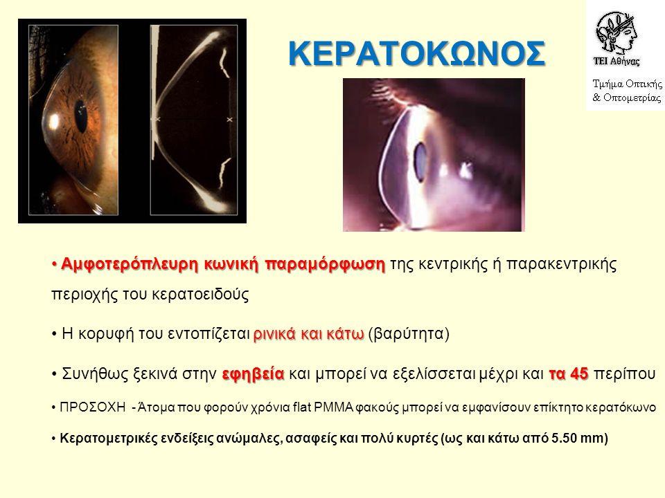 ΚΕΡΑΤΟΚΩΝΟΣ ΣΤΑΔΙΑ : κάτω από 7.20 ● 1ο ΣΤΑΔΙΟ - Ελαφρά ανώμαλες καμπυλότητες κάτω από 7.20, λίγο ασαφή κερατοειδικά είδωλα, έντονος αστιγματισμός, μέτρια ως κακή απόδοση με γυαλιά κάτω από 6.80 ● 2ο ΣΤΑΔΙΟ - Πιο ανώμαλα και παραμορφωμένα κερατομετρικά είδωλα - καμπυλότητες κάτω από 6.80 συνήθως - εμφάνιση κερατοειδικών ραβδώσεων κάτω και από 6.00 ● 3ο ΣΤΑΔΙΟ - Ανώμαλα και παραμορφωμένα (και αρκετά σμικρυμένα κερατομετρικά είδωλα - καμπύλες κάτω και από 6.00 - κεντρικά νεφέλια και ραβδώσεις κάτω από 5.50 ● 4ο ΣΤΑΔΙΟ - Πολύ παραμορφωμένα κερατομετρικά είδωλα - καμπύλες και κάτω από 5.50 (μη μετρήσιμες) - πολύ έντονα κεντρικά και παρακεντρικά νεφέλια - πιθανόν να μη μπορεί να γίνει εφαρμογή φακού
