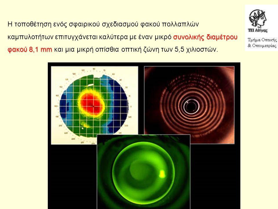 συνολικής διαμέτρου φακού 8,1 mm Η τοποθέτηση ενός σφαιρικού σχεδιασμού φακού πολλαπλών καμπυλοτήτων επιτυγχάνεται καλύτερα με έναν μικρό συνολικής διαμέτρου φακού 8,1 mm και μια μικρή οπίσθια οπτική ζώνη των 5,5 χιλιοστών.
