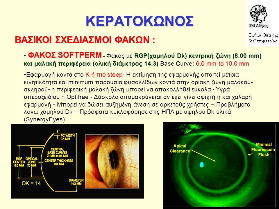 ΚΕΡΑΤΟΚΩΝΟΣ ΒΑΣΙΚΟΙ ΣΧΕΔΙΑΣΜΟΙ ΦΑΚΩΝ : ΦΑΚΟΣ SOFTPERM RGP(χαμηλού Dk) κεντρική ζώνη (8.00 mm) και μαλακή περιφέρεια (ολική διάμετρος 14.3)6.0 mm to 10