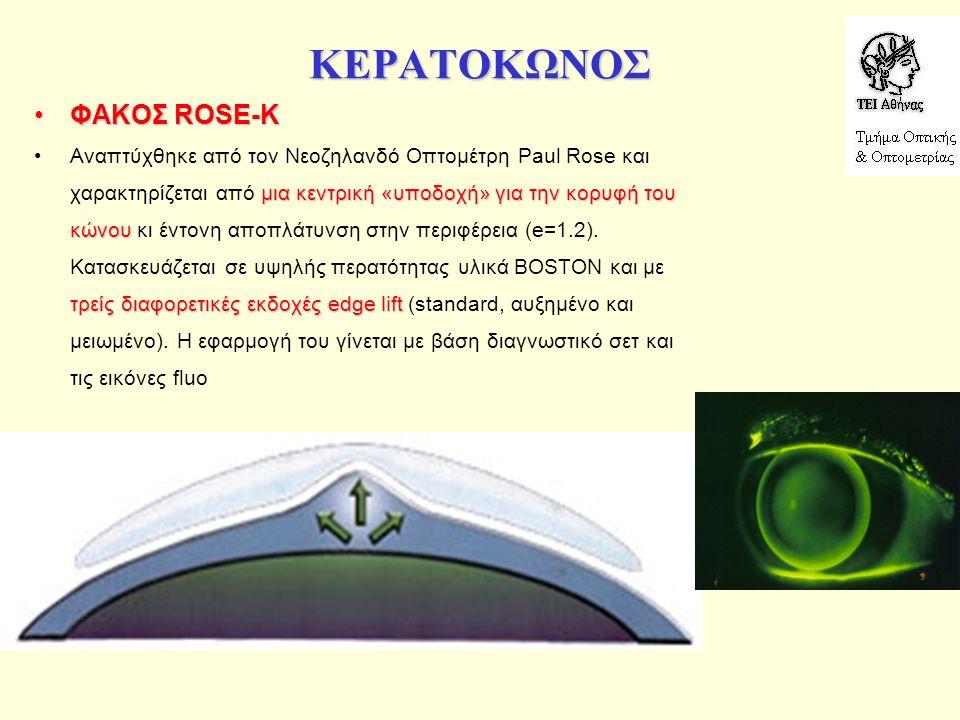 ΚΕΡΑΤΟΚΩΝΟΣ ΦΑΚΟΣ ROSE-KΦΑΚΟΣ ROSE-K μια κεντρική «υποδοχή» για την κορυφή του κώνου τρείς διαφορετικές εκδοχές edge liftΑναπτύχθηκε από τον Νεοζηλανδό Οπτομέτρη Paul Rose και χαρακτηρίζεται από μια κεντρική «υποδοχή» για την κορυφή του κώνου κι έντονη αποπλάτυνση στην περιφέρεια (e=1.2).