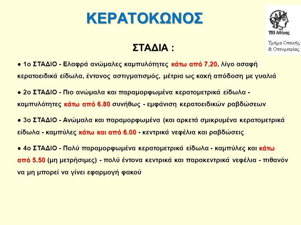 ΚΕΡΑΤΟΚΩΝΟΣ ΣΤΑΔΙΑ : κάτω από 7.20 ● 1ο ΣΤΑΔΙΟ - Ελαφρά ανώμαλες καμπυλότητες κάτω από 7.20, λίγο ασαφή κερατοειδικά είδωλα, έντονος αστιγματισμός, μέ