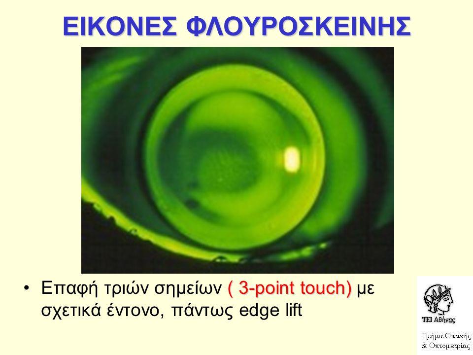 ΕΙΚΟΝΕΣ ΦΛΟΥΡΟΣΚΕΙΝΗΣ ( 3-point touch)Επαφή τριών σημείων ( 3-point touch) με σχετικά έντονο, πάντως edge lift