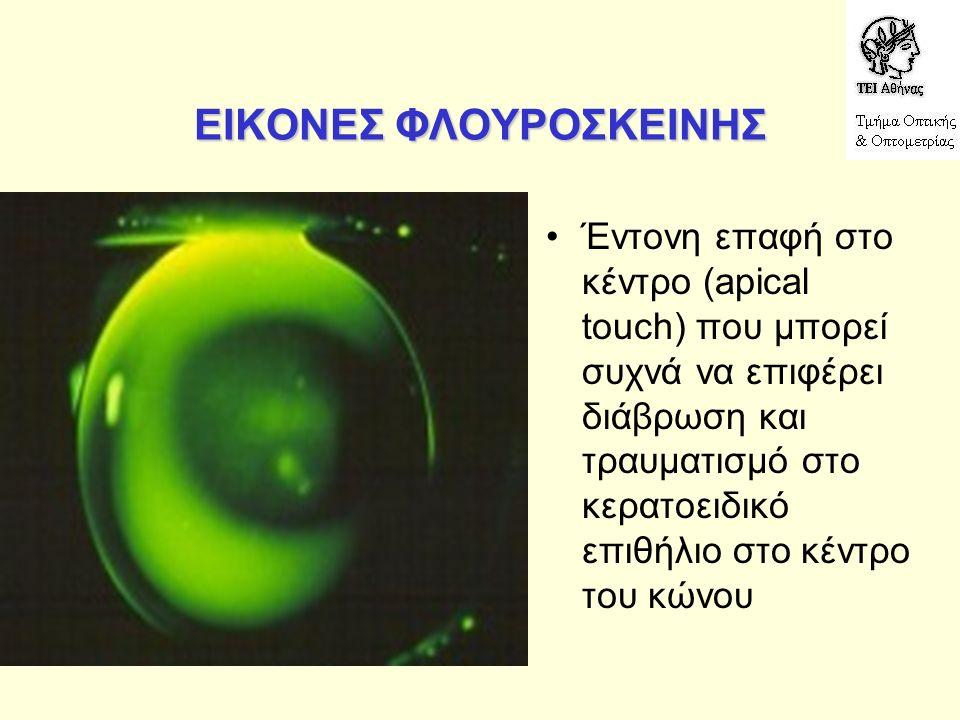 ΕΙΚΟΝΕΣ ΦΛΟΥΡΟΣΚΕΙΝΗΣ Έντονη επαφή στο κέντρο (apical touch) που μπορεί συχνά να επιφέρει διάβρωση και τραυματισμό στο κερατοειδικό επιθήλιο στο κέντρο του κώνου