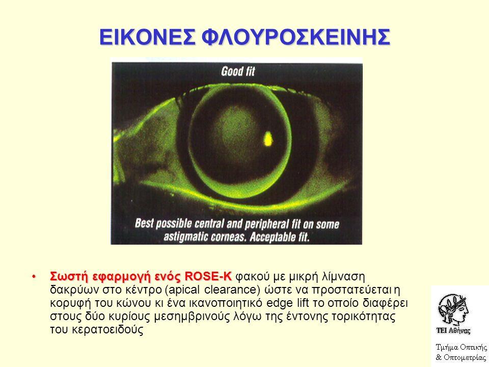 ΕΙΚΟΝΕΣ ΦΛΟΥΡΟΣΚΕΙΝΗΣ Σωστή εφαρμογή ενός ROSE-KΣωστή εφαρμογή ενός ROSE-K φακού με μικρή λίμναση δακρύων στο κέντρο (apical clearance) ώστε να προστατεύεται η κορυφή του κώνου κι ένα ικανοποιητικό edge lift το οποίο διαφέρει στους δύο κυρίους μεσημβρινούς λόγω της έντονης τορικότητας του κερατοειδούς