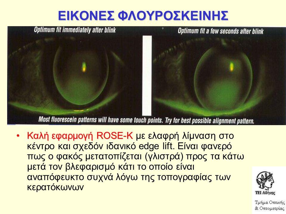 ΕΙΚΟΝΕΣ ΦΛΟΥΡΟΣΚΕΙΝΗΣ Καλή εφαρμογή ROSE-KΚαλή εφαρμογή ROSE-K με ελαφρή λίμναση στο κέντρο και σχεδόν ιδανικό edge lift. Είναι φανερό πως ο φακός μετ