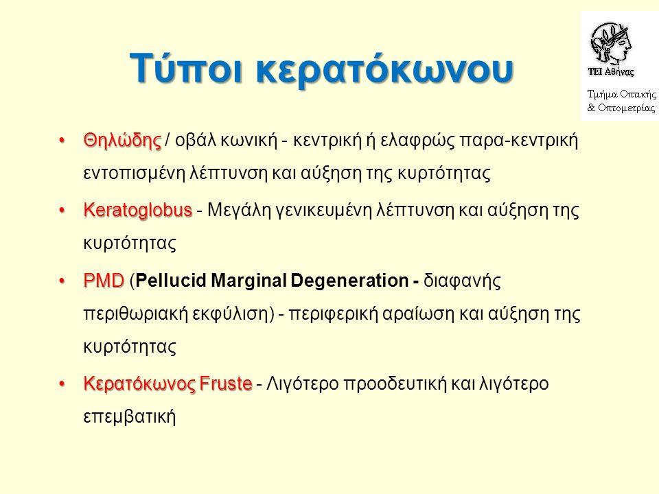 Τύποι κερατόκωνου ΘηλώδηςΘηλώδης / οβάλ κωνική - κεντρική ή ελαφρώς παρα-κεντρική εντοπισμένη λέπτυνση και αύξηση της κυρτότητας KeratoglobusKeratoglo