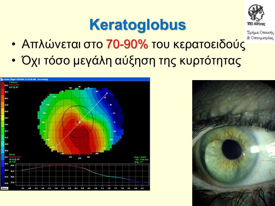 Keratoglobus 70-90%Απλώνεται στο 70-90% του κερατοειδούς Όχι τόσο μεγάλη αύξηση της κυρτότητας