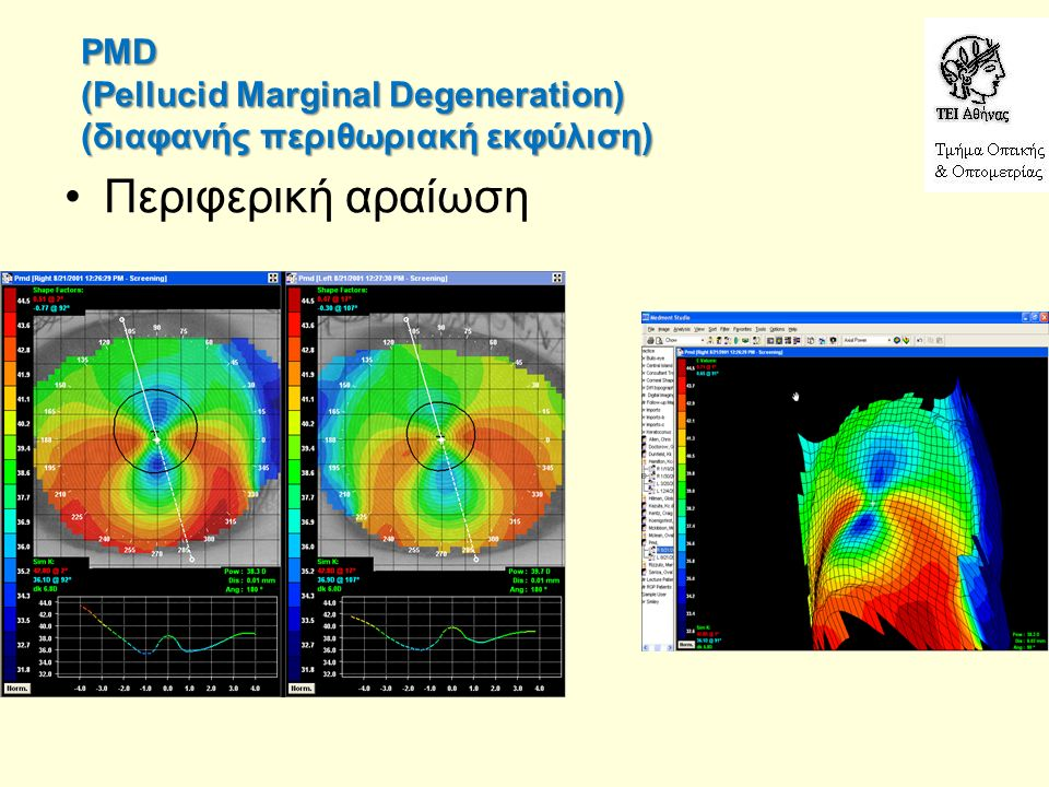 PMD (Pellucid Marginal Degeneration) (διαφανής περιθωριακή εκφύλιση) Περιφερική αραίωση