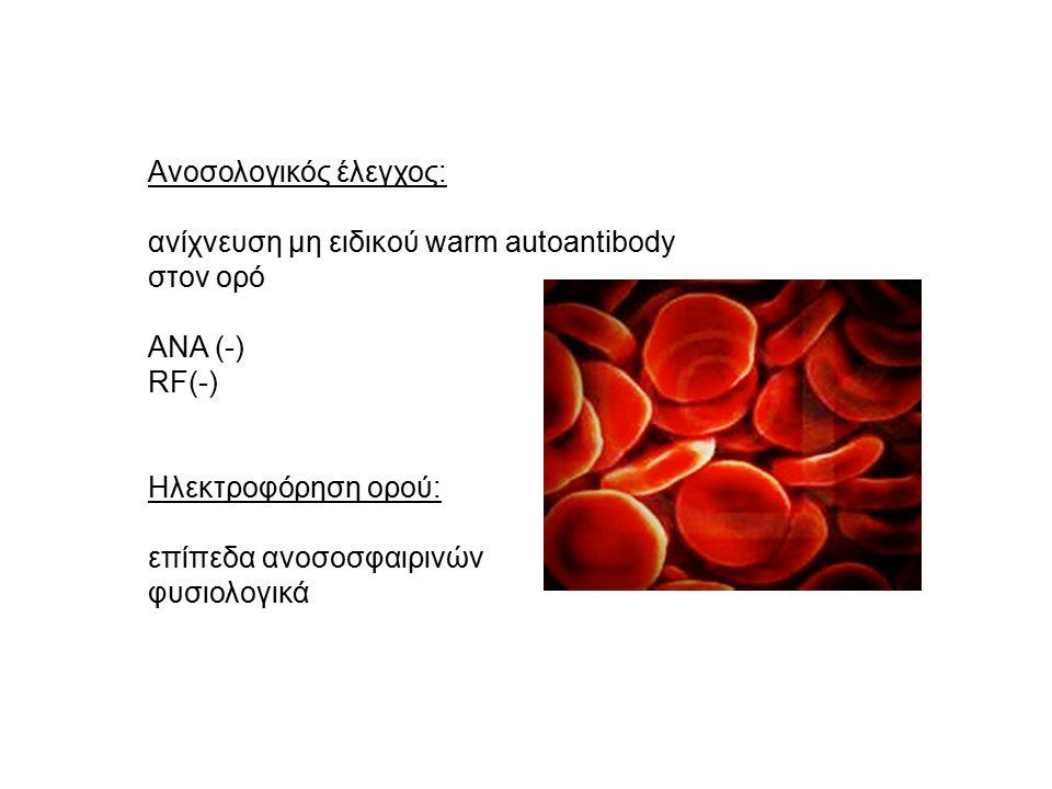 Ανοσολογικός έλεγχος: ανίχνευση μη ειδικού warm autoantibody στον ορό ANA (-) RF(-) Ηλεκτροφόρηση ορού: επίπεδα ανοσοσφαιρινών φυσιολογικά