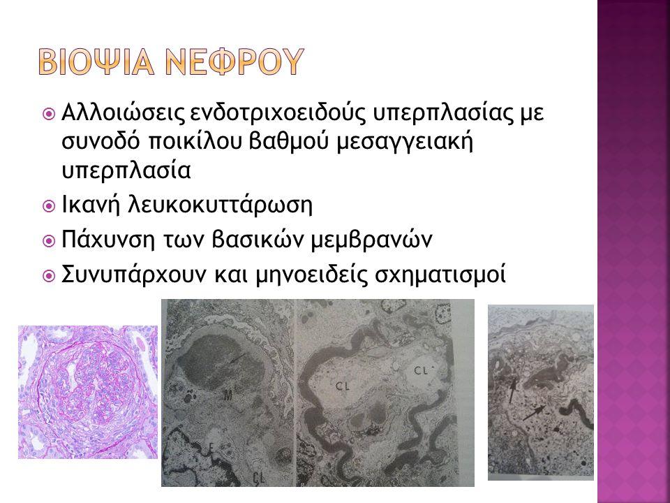  Αλλοιώσεις ενδοτριχοειδούς υπερπλασίας με συνοδό ποικίλου βαθμού μεσαγγειακή υπερπλασία  Ικανή λευκοκυττάρωση  Πάχυνση των βασικών μεμβρανών  Συνυπάρχουν και μηνοειδείς σχηματισμοί