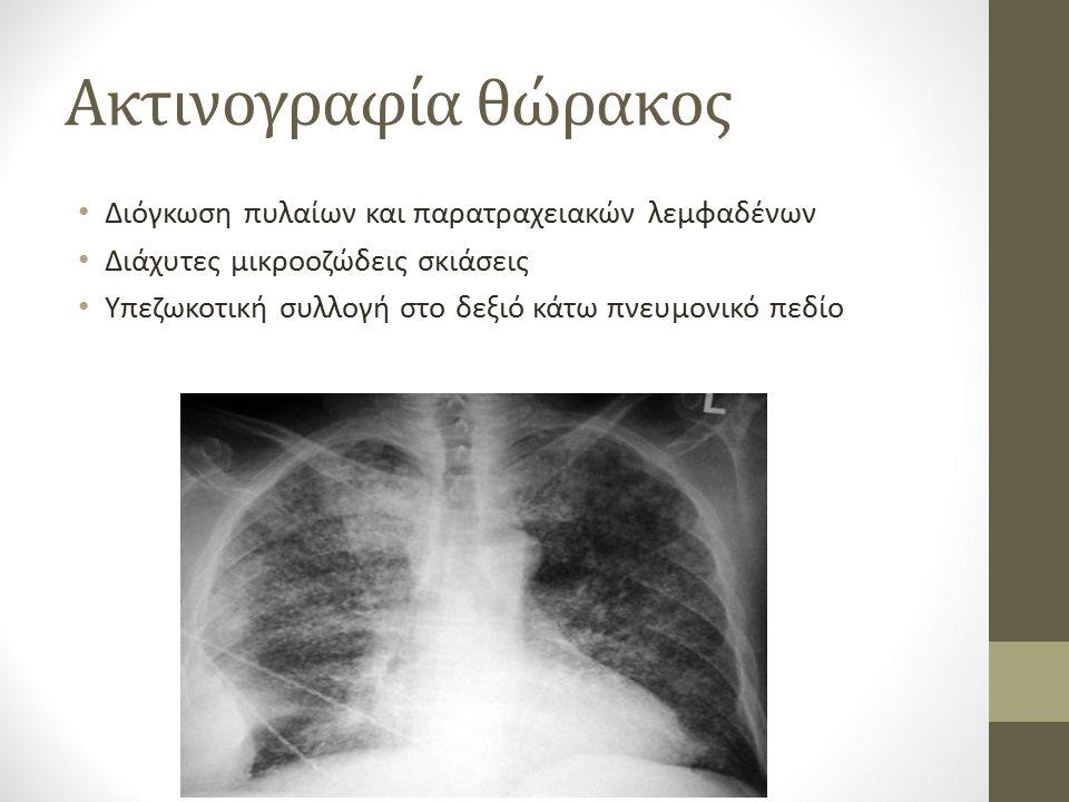 Ακτινογραφία θώρακος Διόγκωση πυλαίων και παρατραχειακών λεμφαδένων Διάχυτες μικροοζώδεις σκιάσεις Υπεζωκοτική συλλογή στο δεξιό κάτω πνευμονικό πεδίο