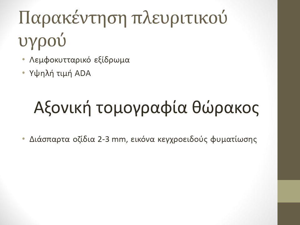 Παρακέντηση πλευριτικού υγρού Λεμφοκυτταρικό εξίδρωμα Υψηλή τιμή ADA Αξονική τομογραφία θώρακος Διάσπαρτα οζίδια 2-3 mm, εικόνα κεγχροειδούς φυματίωσης