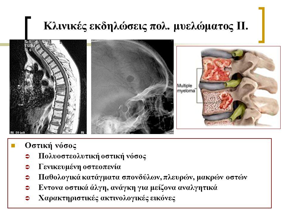 Κλινικές εκδηλώσεις πολ. μυελώματος ΙΙ.