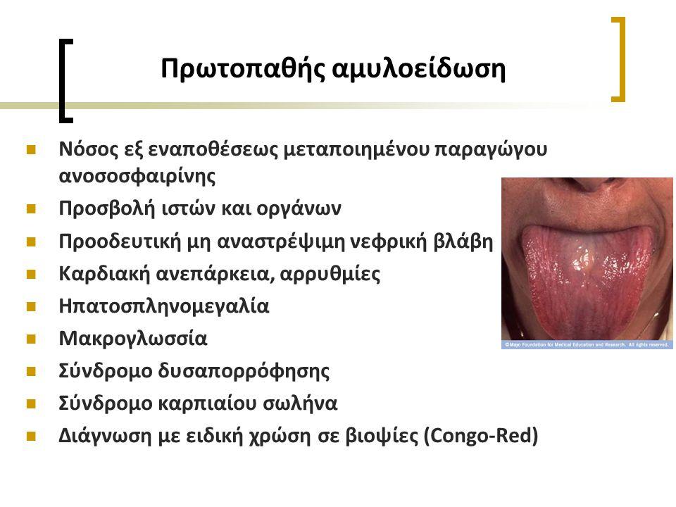 Πρωτοπαθής αμυλοείδωση Νόσος εξ εναποθέσεως μεταποιημένου παραγώγου ανοσοσφαιρίνης Προσβολή ιστών και οργάνων Προοδευτική μη αναστρέψιμη νεφρική βλάβη Καρδιακή ανεπάρκεια, αρρυθμίες Ηπατοσπληνομεγαλία Μακρογλωσσία Σύνδρομο δυσαπορρόφησης Σύνδρομο καρπιαίου σωλήνα Διάγνωση με ειδική χρώση σε βιοψίες (Congo-Red)