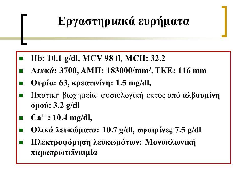 Εργαστηριακά ευρήματα Hb: 10.1 g/dl, MCV 98 fl, MCH: 32.2 Λευκά: 3700, ΑΜΠ: 183000/mm 3, TKE: 116 mm Ουρία: 63, κρεατινίνη: 1.5 mg/dl, Ηπατική βιοχημεία: φυσιολογική εκτός από αλβουμίνη ορού: 3.2 g/dl Ca ++ : 10.4 mg/dl, Ολικά λευκώματα: 10.7 g/dl, σφαιρίνες 7.5 g/dl Ηλεκτροφόρηση λευκωμάτων: Μονοκλωνική παραπρωτεϊναιμία