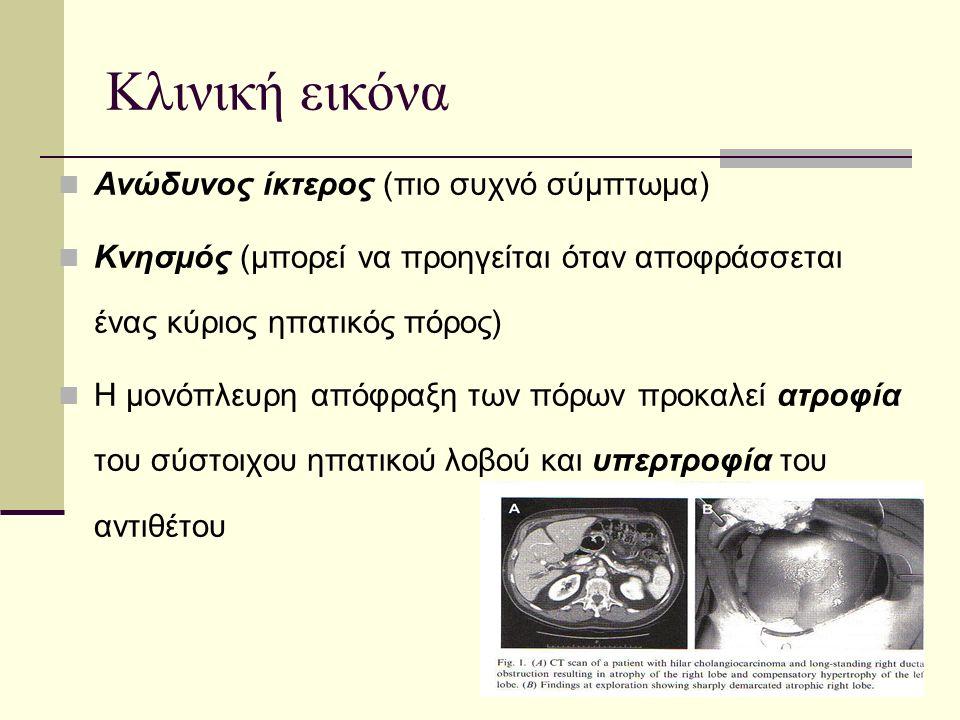 Κλινική εικόνα Ανώδυνος ίκτερος (πιο συχνό σύμπτωμα) Κνησμός (μπορεί να προηγείται όταν αποφράσσεται ένας κύριος ηπατικός πόρος) Η μονόπλευρη απόφραξη των πόρων προκαλεί ατροφία του σύστοιχου ηπατικού λοβού και υπερτροφία του αντιθέτου
