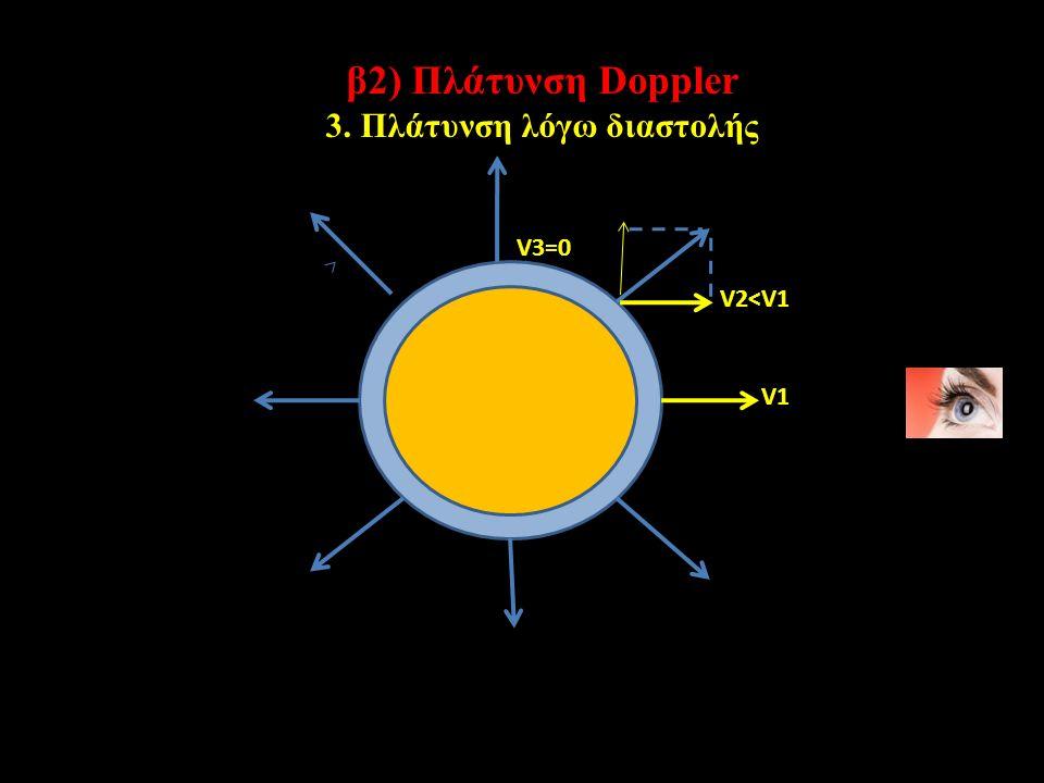 β2) Πλάτυνση Doppler 3. Πλάτυνση λόγω διαστολής V1 V2<V1 V3=0