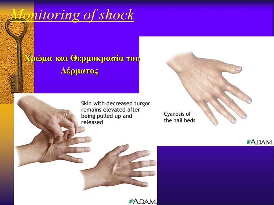 Monitoring of shock
