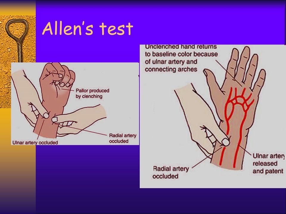 Allen's test