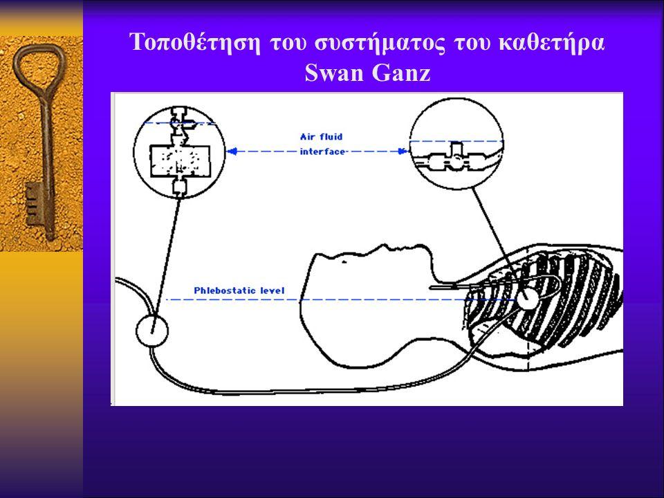 Τοποθέτηση του συστήματος του καθετήρα Swan Ganz