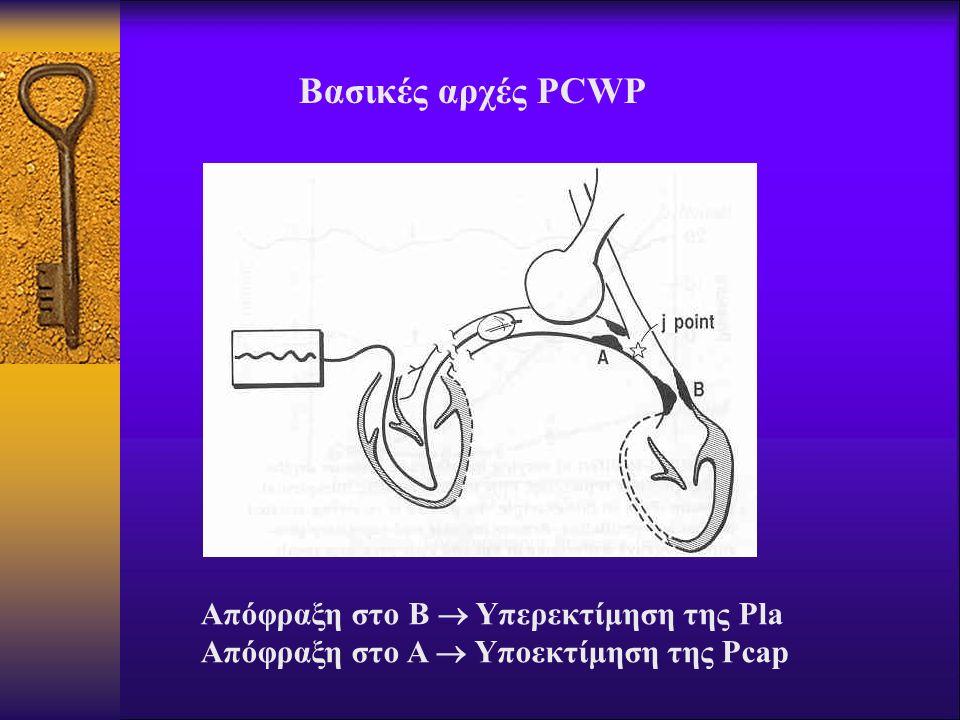 Βασικές αρχές PCWP Απόφραξη στο Β  Υπερεκτίμηση της Pla Απόφραξη στο A  Υπoεκτίμηση της Pcap