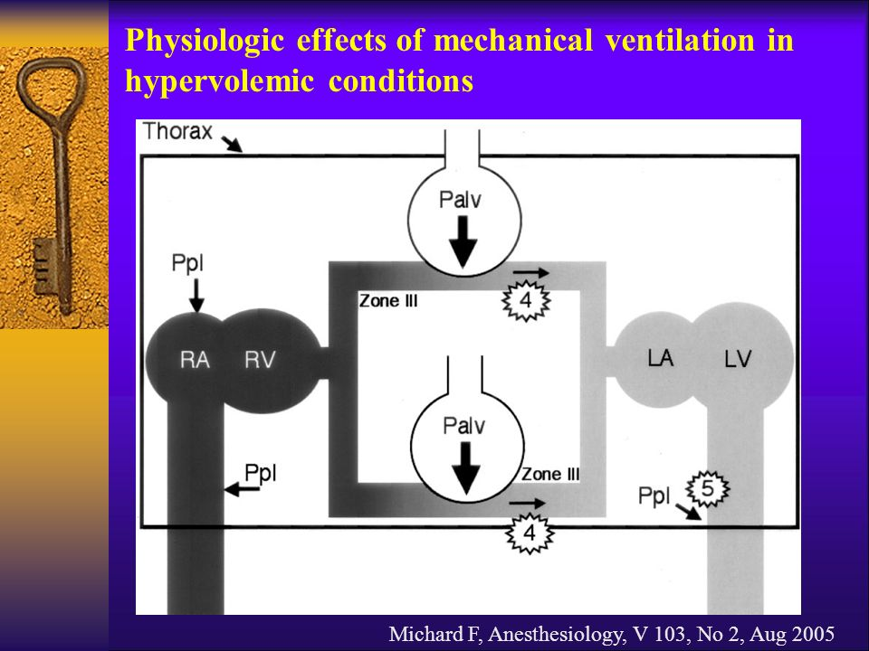 Michard F, Anesthesiology, V 103, No 2, Aug 2005 Physiologic effects of mechanical ventilation in hypervolemic conditions