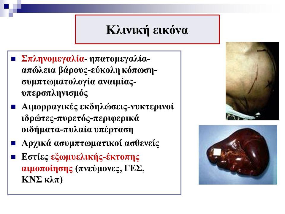 Κλινική εικόνα Σπληνομεγαλία- ηπατομεγαλία- απώλεια βάρους-εύκολη κόπωση- συμπτωματολογία αναιμίας- υπερσπληνισμός Αιμορραγικές εκδηλώσεις-νυκτερινοί ιδρώτες-πυρετός-περιφερικά οιδήματα-πυλαία υπέρταση Αρχικά ασυμπτωματικοί ασθενείς Εστίες εξωμυελικής-έκτοπης αιμοποίησης (πνεύμονες, ΓΕΣ, ΚΝΣ κλπ)