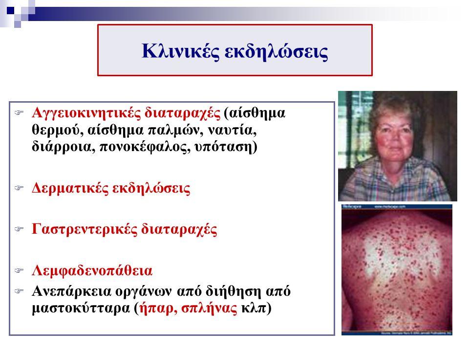 Κλινικές εκδηλώσεις  Αγγειοκινητικές διαταραχές (αίσθημα θερμού, αίσθημα παλμών, ναυτία, διάρροια, πονοκέφαλος, υπόταση)  Δερματικές εκδηλώσεις  Γαστρεντερικές διαταραχές  Λεμφαδενοπάθεια  Ανεπάρκεια οργάνων από διήθηση από μαστοκύτταρα (ήπαρ, σπλήνας κλπ)