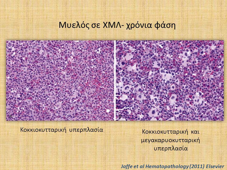 Μυελός σε ΧΜΛ- χρόνια φάση Κοκκιοκυτταρική υπερπλασία Κοκκιοκυτταρική και μεγακαρυοκυτταρική υπερπλασία Jaffe et al Hematopathology (2011) Elsevier
