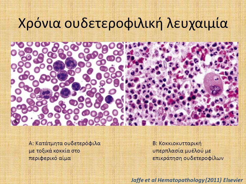 Χρόνια ουδετεροφιλική λευχαιμία Α: Κατάτμητα ουδετερόφιλα με τοξικά κοκκία στο περιφερικό αίμα Β: Κοκκιοκυτταρική υπερπλασία μυέλού με επικράτηση ουδε