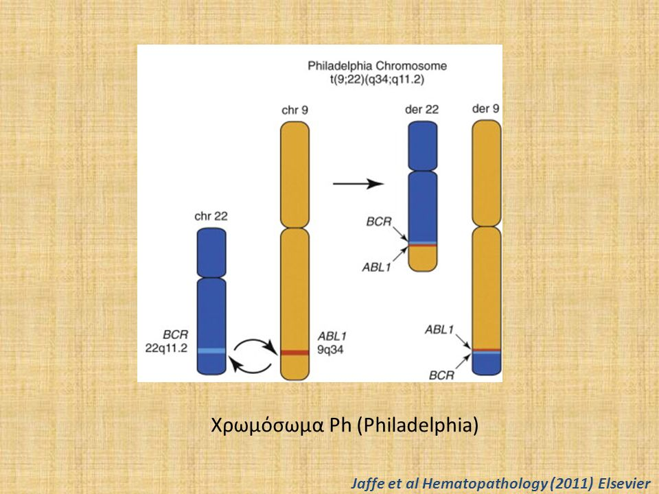 Χρόνια μυελογενής λευχαιμία Βλαστική φάση Α: αθροίσεις βλαστών με παρουσία ηωσινοφίλων Β: άωρα ηωσινόφιλα και μονοκύτταρα- παρουσία inv(16)(p13-1q22) Jaffe et al Hematopathology (2011) Elsevier
