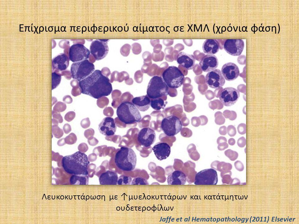 Χρόνια μυελογενής λευχαιμία (6) Μοριακή παθογένεια Στο 90-95% των περιπτώσεων ΧΜΛ κατά τη διάγνωση, παρουσία της t(9;22) με δημιουργία του Ph χρωμοσώματος Με τη διαμετάθεση t(9;22) μεταφέρονται αλληλουχίες του γονιδίου ABL1 από το χρωμόσωμα 9 στο 22 όπου βρίσκονται οι αλληλουχίες του γονιδίου BCR Σε 5-10% ανιχνύεται με FISH, RT-PCR ή Southern blot η παρουσία «κρυπτικής» διαμετάθεσης ή συμπλόκων διαμεταθέσεων που οδηγούν επίσης στη δημιουργία του BCR/ABL Το αποτέλεσμα είναι η δημιουργία μίας πρωτεΐνης (p210 ή σπανιότερα p230, p190) με αυξημένη δραστηριότητα τυροσινικής κινάσης Η πρωτεΐνη bcr/abl1 προάγει τον κυτταρικό πολλαπλασιασμό και αναστέλλει την απόπτωση, επιμηκύνοντας τη διάρκεια ζωής του κυττάρου Σε σπάνιες περιπτώσεις συνυπάρχει μετάλλαξη JAK2V617F