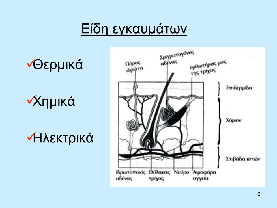 6 Είδη εγκαυμάτων Θερμικά Χημικά Ηλεκτρικά