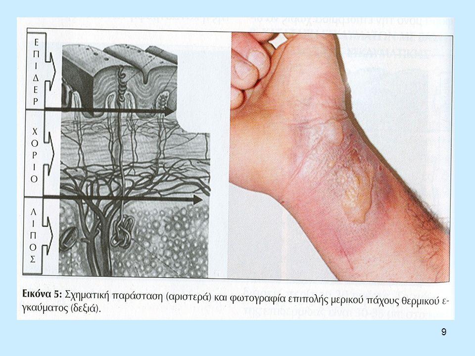 20 Επιπλοκές Απόπτωση του δέρματος, γάγγραινα, ουλοποίηση, νεφρίτιδα, πνευμονία, διαταραχή του ανοσοποιητικού συστήματος εντερικές διαταραχές αποτελούν πιθανές επιπλοκές.