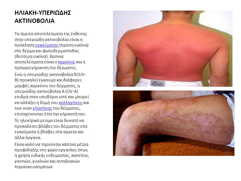 ΗΛΙΑΚΗ-ΥΠΕΡΙΩΔΗΣ ΑΚΤΙΝΟΒΟΛΙΑ Τα άμεσα αποτελέσματα της έκθεσης στην υπεριώδη ακτινοβολία είναι η πρόκληση εγκαύματος (πρώτη εικόνα) στο δέρμα και φωτοδερματίτιδας (δεύτερη εικόνα).